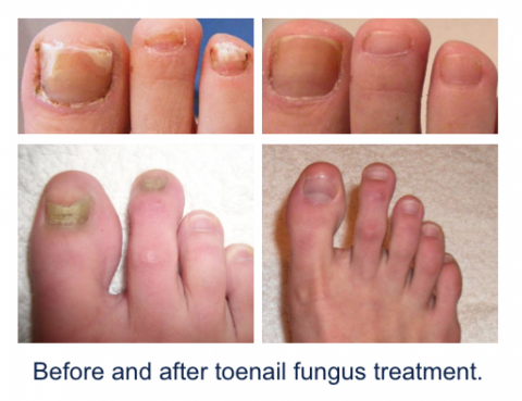 Nail Fungal Treatment in Thailand