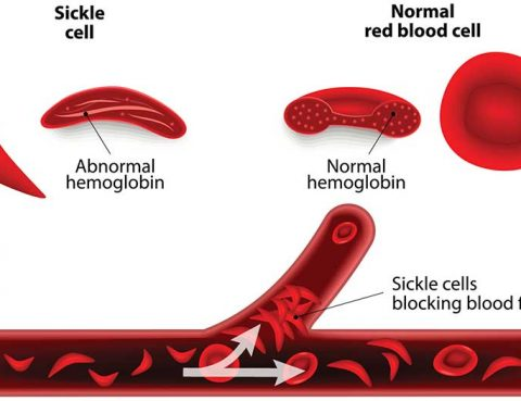 Sickle Cell Anemia Treatment in Thailand