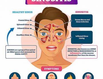 Sinusitis Treatment in Thailand