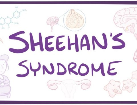 Sheehan Syndrome Treatment in Thailand