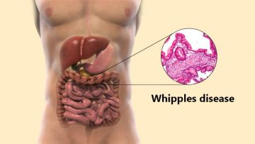 Whipple Disease Treatment in Thailand