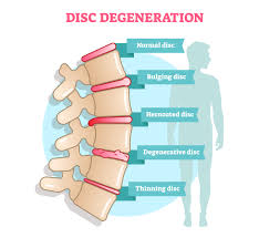 Degenerative Disc Disease Treatment in Thailand