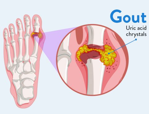 Gout Treatment in Thailand