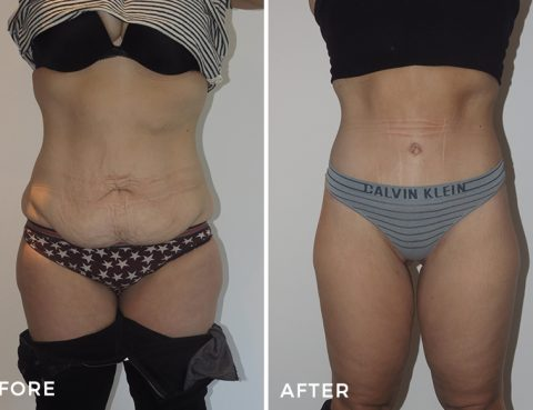 Best Lower Body Lift Surgery in Thailand