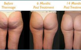 Cellulite Treatment in Thailand