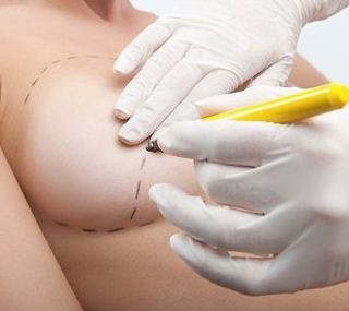Breast Implant Removal in Thailand