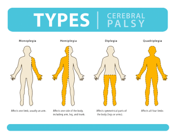 Cerebral Palsy Treatment in Thailand