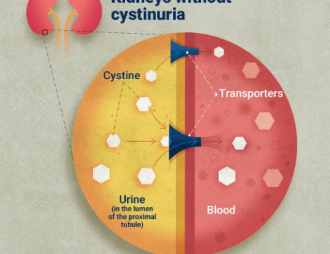 Cystinuria Diagnosis and Treatment in Thailand