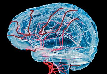 Vascular Dementia Diagnosis and Treatment in Thailand