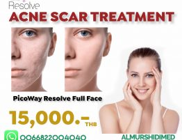 Best Acne Scar Removal in Thailand