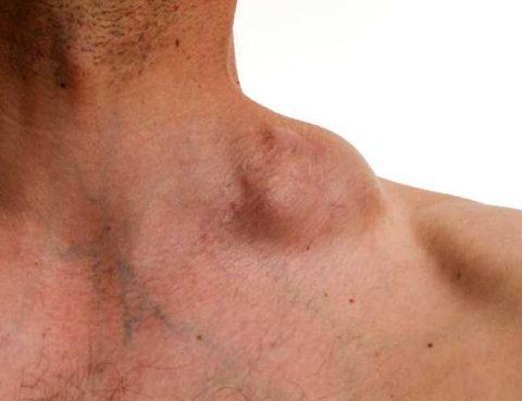 Hodgkin's Lymphoma (Hodgkin's Disease)
