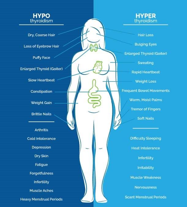 Hyperthyroidism and Hyperthyroidism