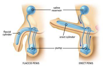 P-Shot for Erectile Dysfunction